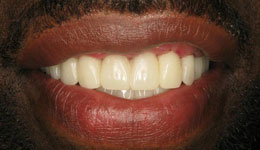 Upper Teeth Replacement with Dental Implants