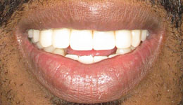 Smile in a Day Dental Implants