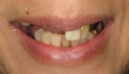 Replacement of Upper Teeth without Bone Grafting