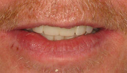 Replace Upper and Lower Teeth with Smile in a Day