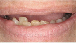 All on Four for Complete Tooth Loss