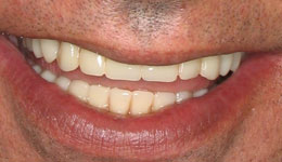 Replacing Missing Teeth with Smile in a Day