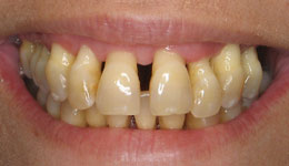 Smile in a Day for Severe Periodontitis