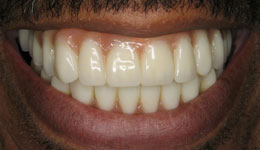 Periodontitis Treatment with Dental Implants