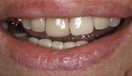 Minimally Invasive Smile in a Day