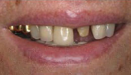 Severely Decayed Tooth Replacement
