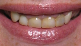 Correct a Gummy Smile with Laser Lengthening