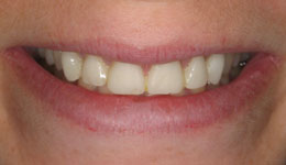 Laser Crown Lengthening with Veneers