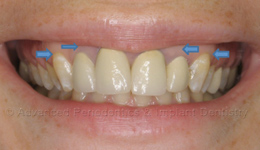 Laser Esthetic Crown Lengthening