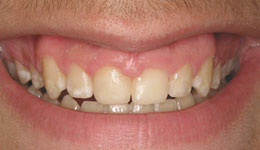 Laser Esthetic Crown Lengthening for Gummy Smile