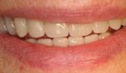 Replace Lower Unstable Dentures with Mandibular Fixed Implant Bridge