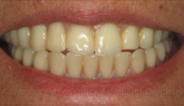 Replacing Dentures with All on Six