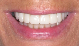 Periodontal Disease Treatment with Dental Implants