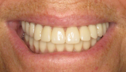 Replace Dentures with Smile in a Day