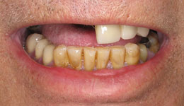 Avoid Dentures with Complete Tooth Replacement