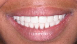 Full Mouth Restoration with Smile in a Day