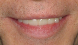 Front Denture Replacement with Smile in a Day