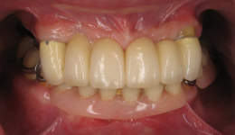 Smile in a Day Front Tooth Replacement