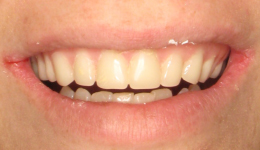 smile in a day replace dentures