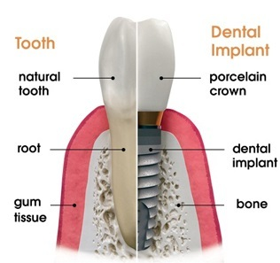 How much do dental implants cost in NYC