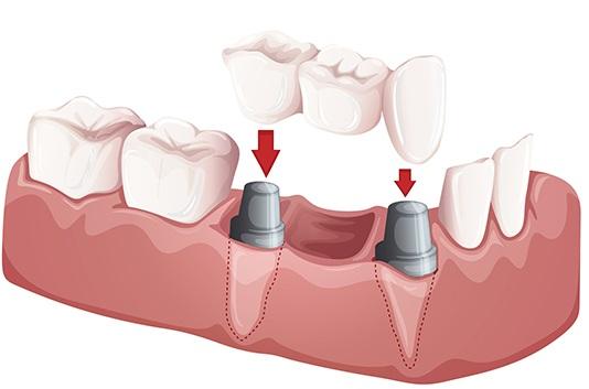 Illustration of Dental Bridges from Advanced Periodontics NYC