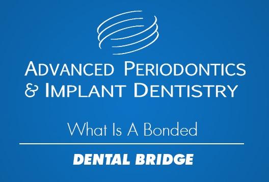 What is a bonded dental bridge?